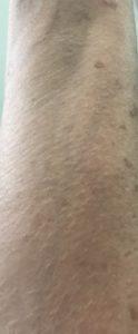 ombre Fair, crème BB hydratante teintée Derma E SPF 30 mélangée à mon avant-bras; c'est un assez bon match, neversaydiebeauty.com